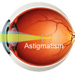 Astigmatism Laser Eye Surgery: Pros and Cons