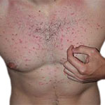 Itchy Rash on Chest - What Should I Do About It?