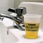 Dark Yellow Urine
