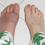 Bunion Surgery Complications