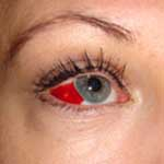 Anterior Uveitis Causes and Treatment