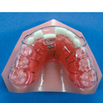 Orthodontic Appliances For Crossbite