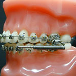 Orthodontic Appliances For Overbite