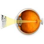 LASIK For Farsightedness - How Does It Work?