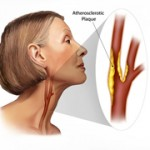 Carotid Atherosclerosis Symptoms and Treatment Options