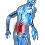 Ankylosing Spondylitis Symptoms: Lower Back Pain and Fatigue