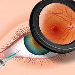 macular degeneration injections