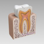 root canal alternative